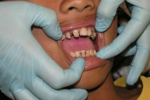 洗牙一个月后还是敏感的原因应该如何治疗